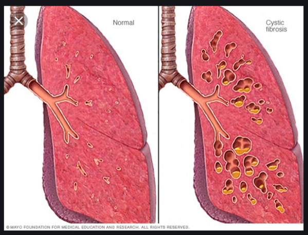 CF Lungs